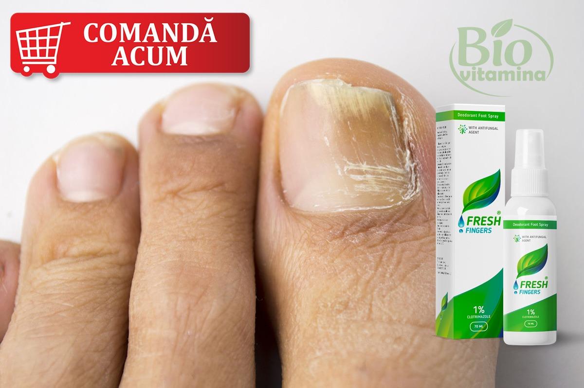 fresh-fingers-spray-ciuperca-piciorului-unghie