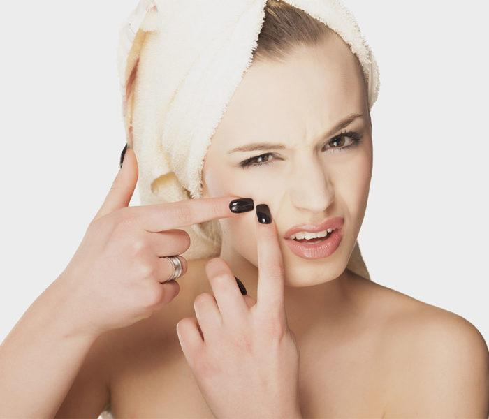 Alimente pe care trebuie să le evitaţi dacă aveţi acnee