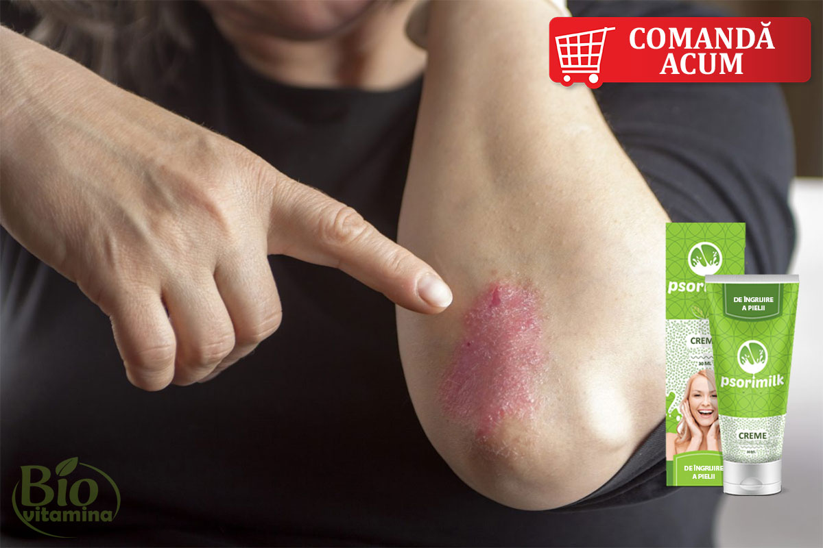 psorimilk-psoriazis-eczema-tratament-piele-ingrijire