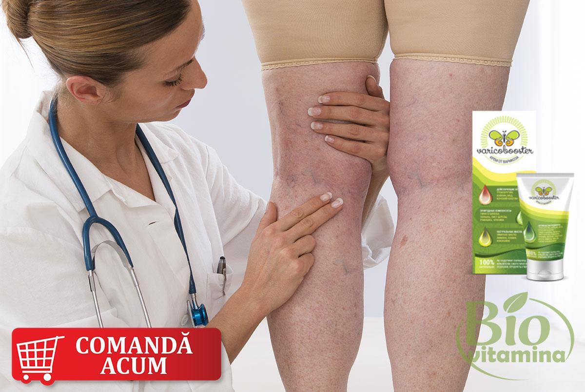 varicobooster-tratament-picioare-doctor-crema-farmacia-pret